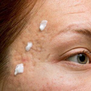 טיפול בצלקות בעור