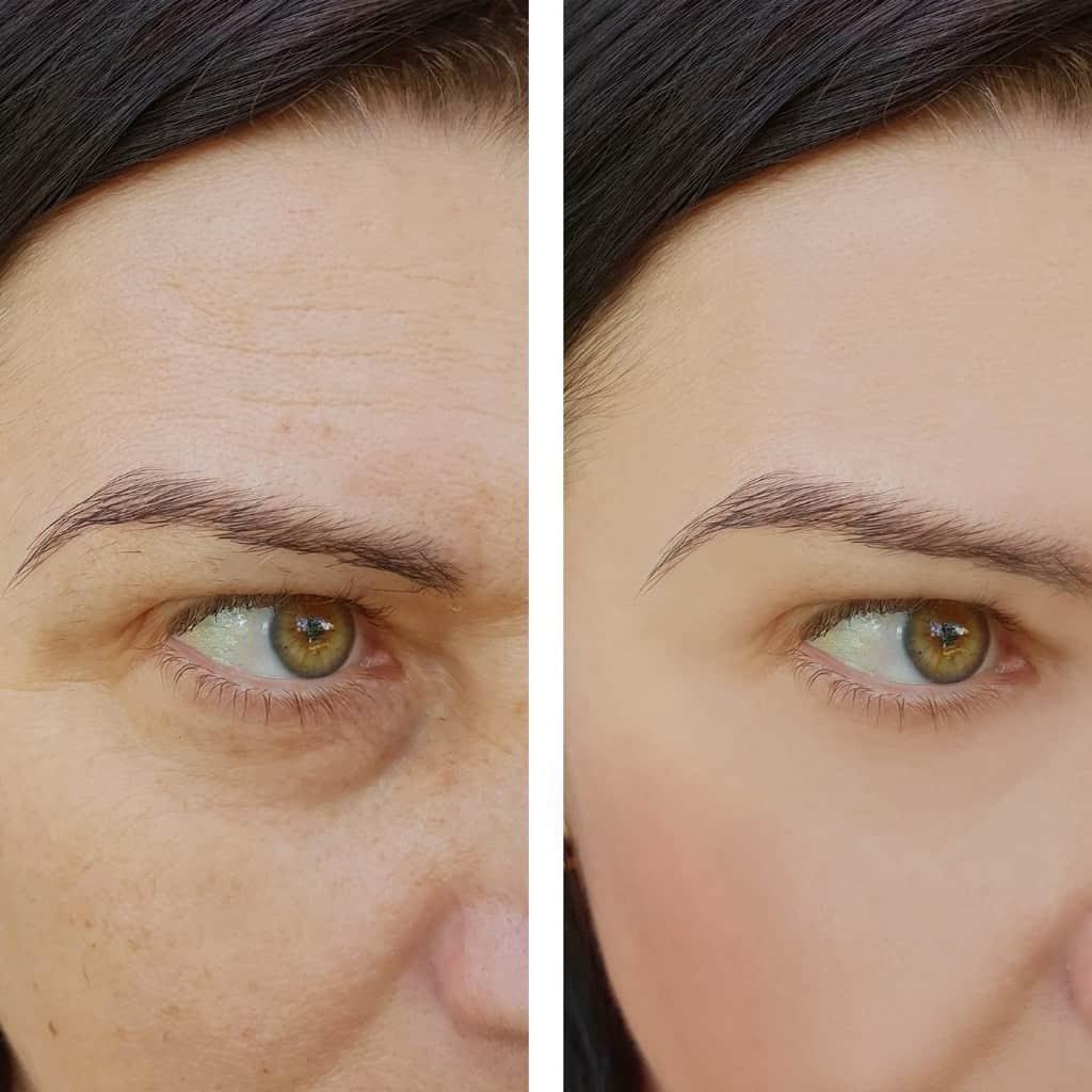 השמש והזדקנות העור (פוטו-אייג'ינג)