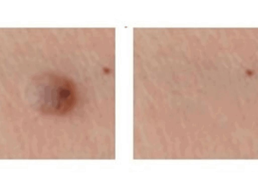 טיפול-פיברובלסט-להסרת-יבלות